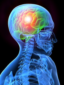 Natural relief of migraines in Victoria British Columbia